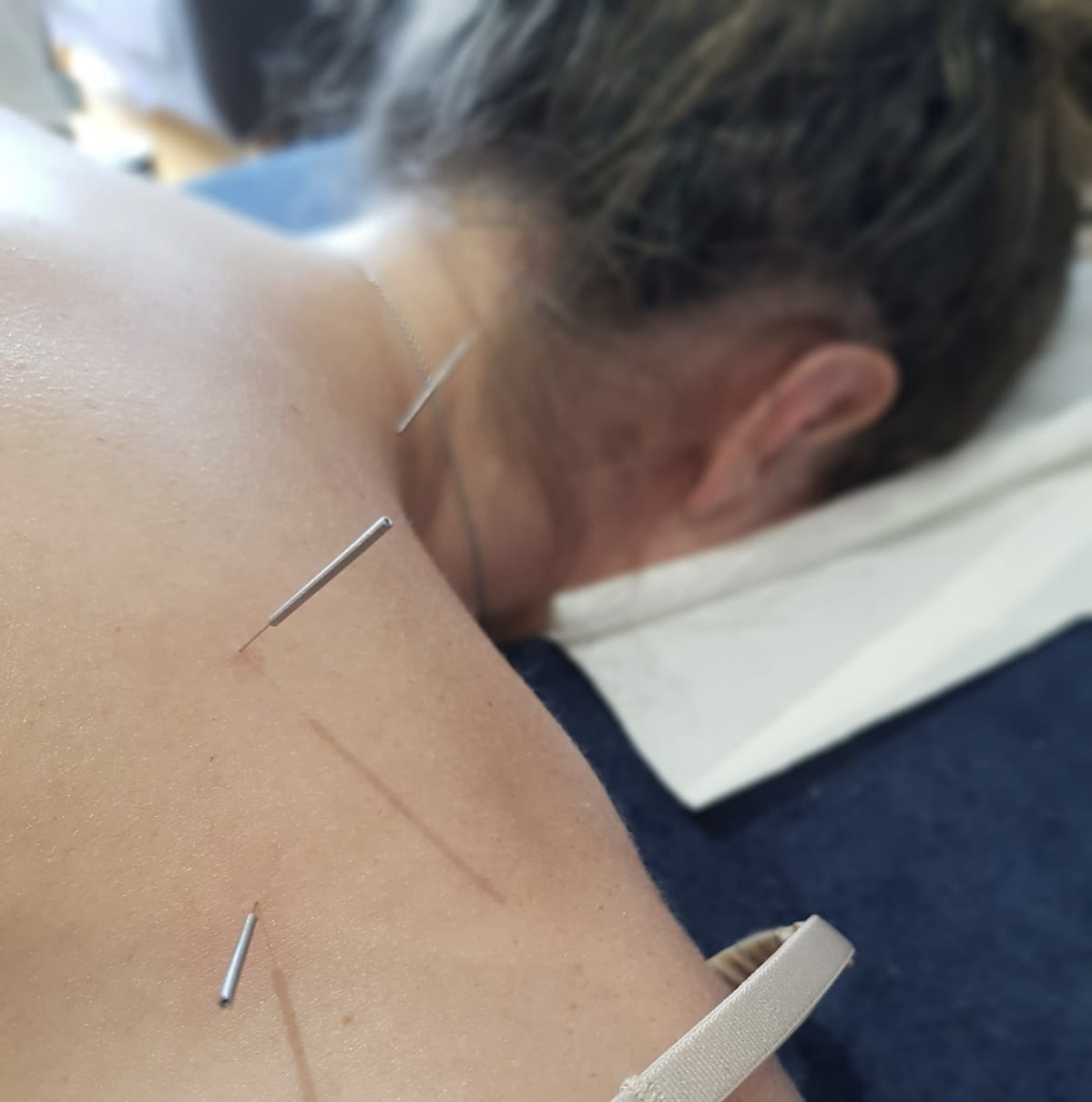 Dry Needling by Kaitlyn J